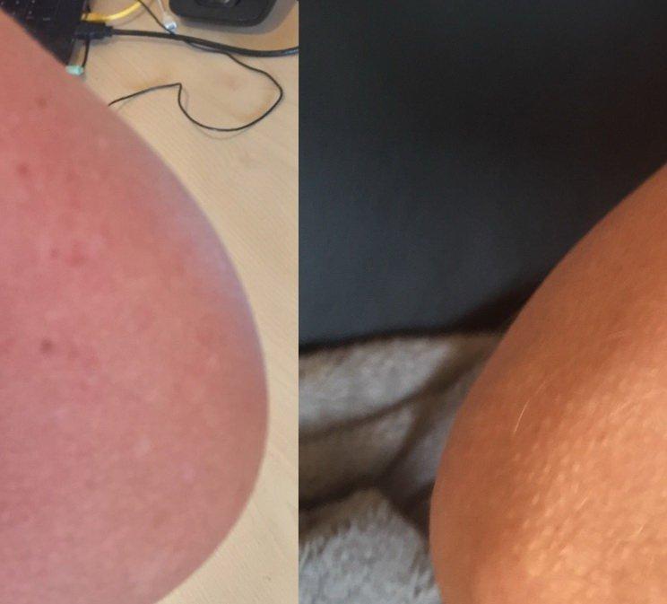 Hyposensibilisierung vierter Termin-allergische Reaktion