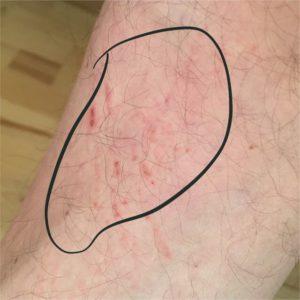 Tag 2 mit Hyposensibilisierung, Quaddeln am Bein