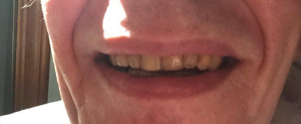 Professionelle Zahnreinigung nach Behandlung