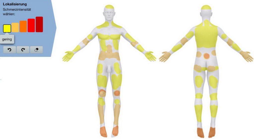 Ganzkörperschmerz  Fibromyalgie mit Behandlung Dronabinol